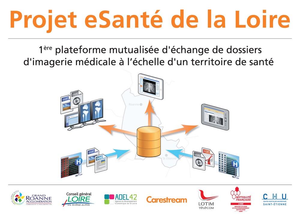 Projet eSante de la Loire