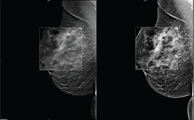 breast tomosynthesis cme Apply mqsa standards for digital breast tomosynthesis accreditation and comply with new mqsa equip standards this cme activity seeks to fulfill the educational needs of radiologists and technologists who manage patients with possible breast cancer undergoing breast magnetic resonance imaging (mri) or.