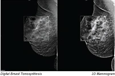 Tomosynthesis images