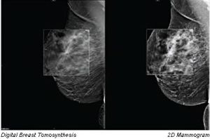 This image shows the difference between digital breast tomosynthesis (DBT) and traditional 2D mammogram technology.